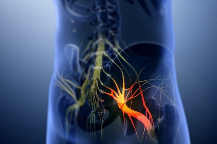 Is Your Sciatica Coming From Your Spine or Your SI Joint? SI-BONE